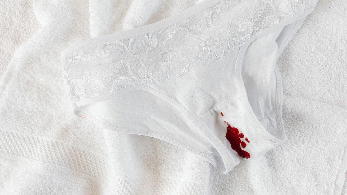 menstruasi tidak normal